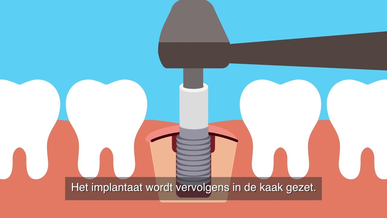 Een implantaat zetten bij de tandarts