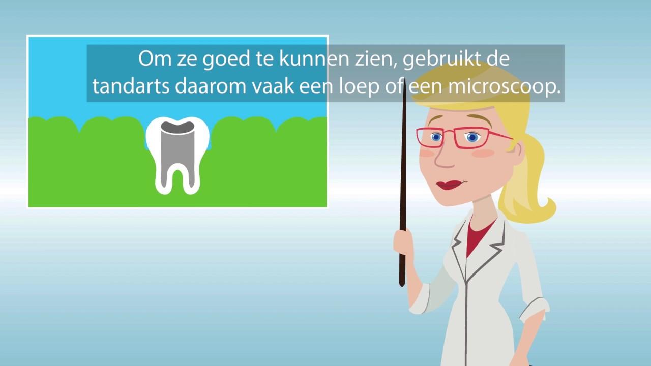 Wortelkanaalbehandeling bij de tandarts